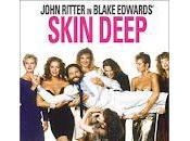 Skin Deep Blake Edwards
