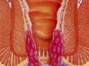 Anche emorroidi sono delle varici