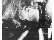 Combustione spontanea negli esseri umani: mito realtà?