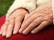L'invecchiamento patologico: malattia Alzheimer