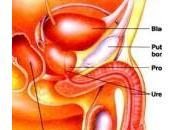 Prostatite: cause trattamento cure