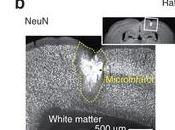 Individuare piccole ischemie cerebrali prevenire danni gravi
