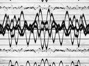Epilessia disbiosi (passando vaccini radiazioni telefonino)