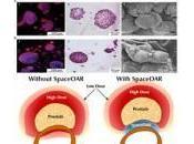 distanziatore idrogel radioterapia alla prostata