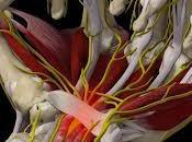 Sindrome tunnel carpale malattia professionale sempre diffusa