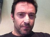 Hugh Jackman subito un'operazione basalioma