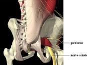 Nervo sciatico Piriforme..qual problema?