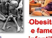 Obesità fame infantile. (Video)