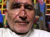 Iran: picchiato sangue dagli agenti dell'intelligence regista dissidente mohammad nourizad. vedere credere