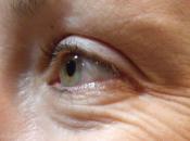 Usa, rughe viso potrebbero indicarci quando vivremo?