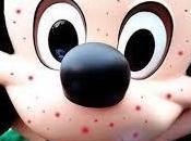 Morbillo, epidemia parco giochi della Disneyland infetti