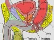 Come prevenire problemi alla prostata l'alimentazione [Infografica].