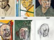 Alzheimer: malattia lungo addio