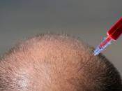 Plasma Ricco Piastrine (PRP) autotrapianti calvizie. Serve davvero? autografts baldness. Really needs?