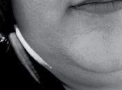 #doppiomentostop: oggi questo difetto fisico essere superato senza chirurgia