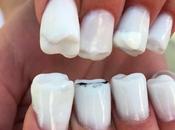 Buccia Banana/Se unghie avessero denti…