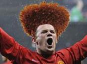 Rooney rivela Twitter trapianto capelli: felice (??)