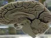 Perdonare torto aiuta stare meglio, dice scienza. studio ricercatori pisani sulla risonanza magnetica funzionale.