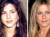 Jennifer Aniston ieri oggi mezzo botox